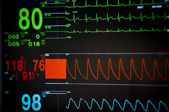 Vital Signs on an ICU Monitor